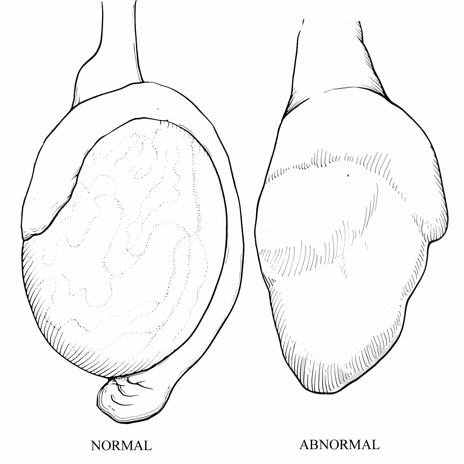 normal vs. abnormal testicle